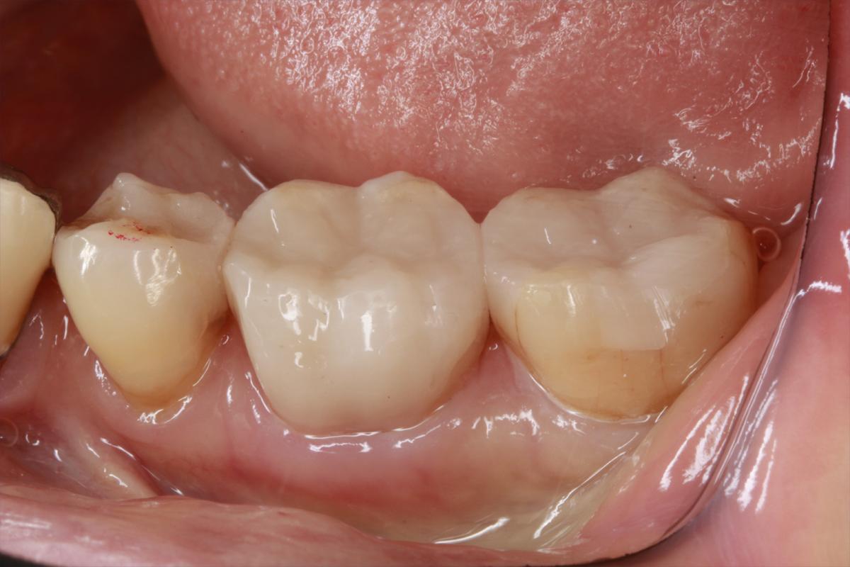 銀歯を1日で白い歯に(CR)|埼玉県上尾市の歯医者、かわの歯科医院