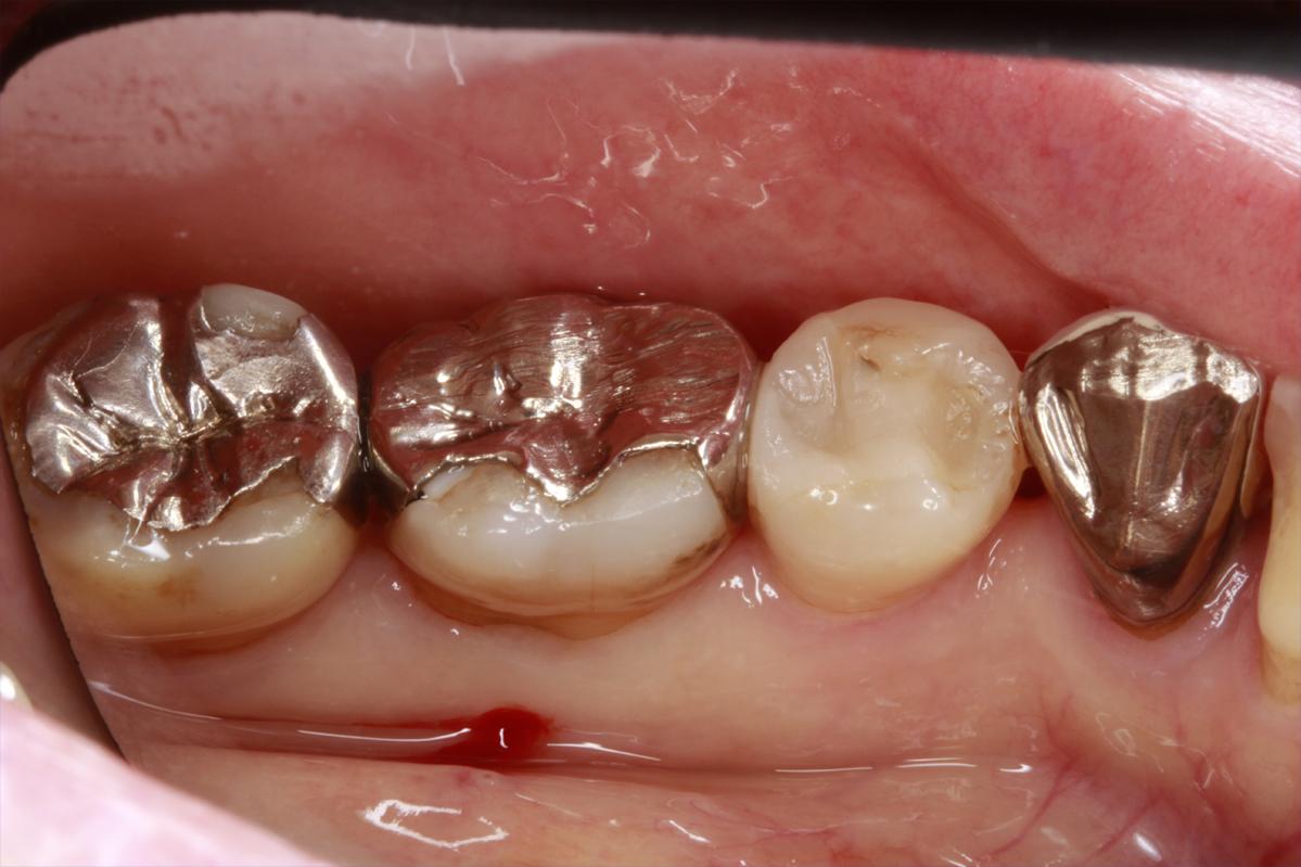 銀歯を白く(審美歯科・差し歯)|埼玉県上尾市の歯医者、かわの歯科医院