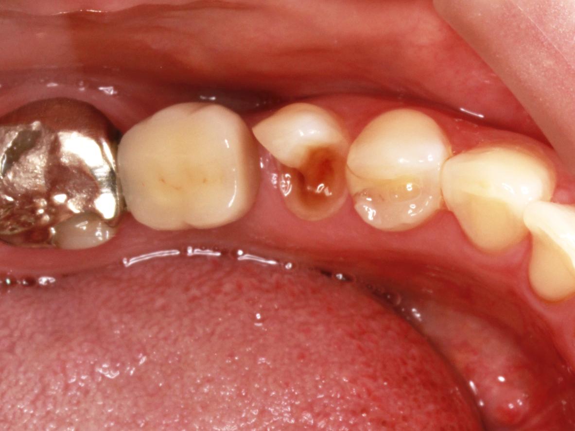 銀歯を安価(安い)に白い歯に(CR)|埼玉県上尾市の歯医者、かわの歯科医院