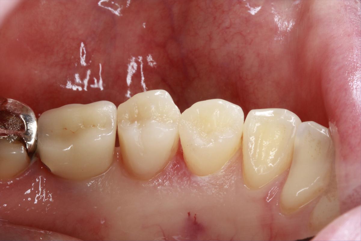 ダイレクトボンディング治療|埼玉県上尾市の歯医者、かわの歯科医院